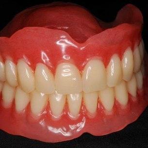 Удобные полные съемные протезы на верхнюю и нижнюю челюсти