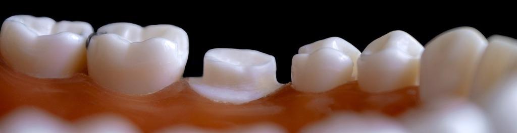 Dentistry 4472925 1280