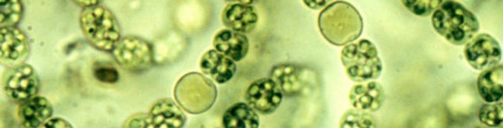 Cyanobacteria microscope big cagov waterboards1