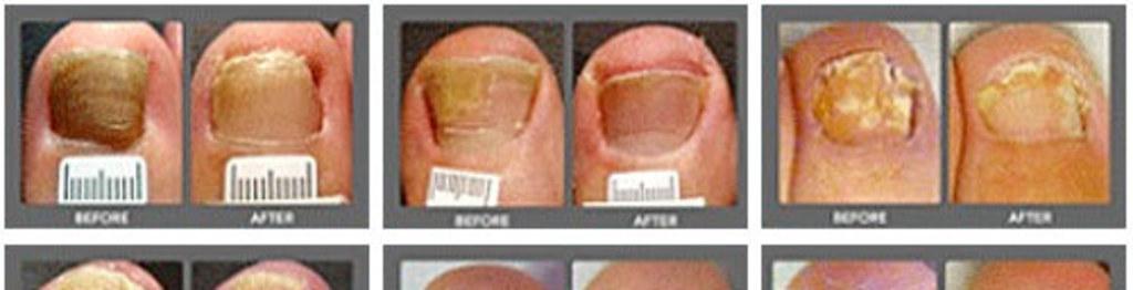Nail fangus